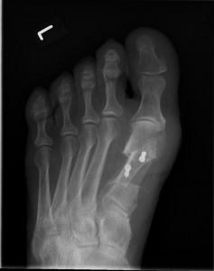 C2: Hallux valgus nach OP, Scarf Osteotomie