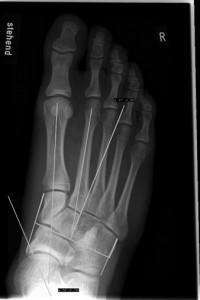 B1: Plattfuss, Röntgenbild stehend vor OP mit Cotton-Osteotomie und Calcaneus-Doppelosteotomie
