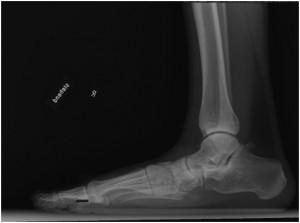A1: Plattfuss, Röntgenbild seitlich vor OP
