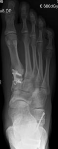 B2: Plattfusskorrektur mit Gelenkerhalt, Cotton-Osteotomie und Calcaneus-Doppelosteotomie